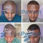 FUE Haartransplantatie