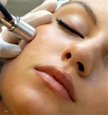 Grote foto microdermabrasie verbetert huidstructuur diensten en vakmensen schoonheidsspecialisten