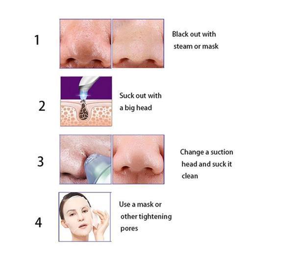 Grote foto blackhead remover acne puistjes mee eter verwijderen 2 kleu beauty en gezondheid gezichtsverzorging
