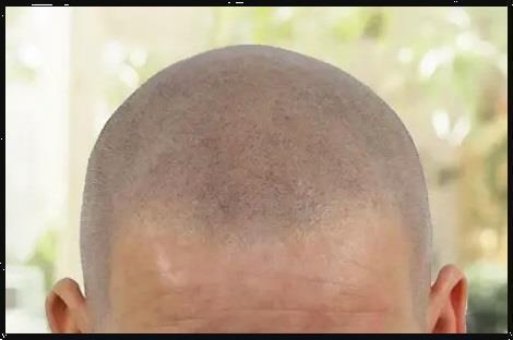 Grote foto scalp pigmentatie behandeling beauty en gezondheid haarverzorging