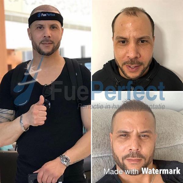 Grote foto fue haartransplantatie diensten en vakmensen haartransplantatie