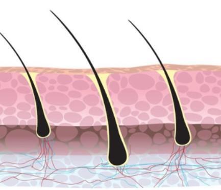 Grote foto haarstamcel transplantatie behandeling beauty en gezondheid haarverzorging