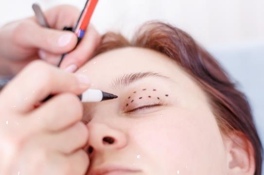 Grote foto ooglidcorrectie bij acuramedischcentrum beauty en gezondheid overige beauty en gezondheid
